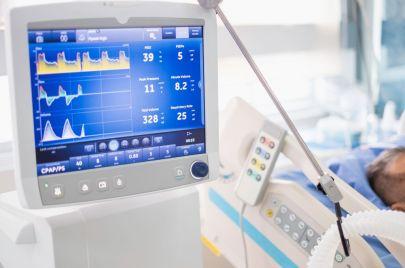 جمعية أخصائيي الإنعاش ترفض أجهزة التنفس الفلسطينية