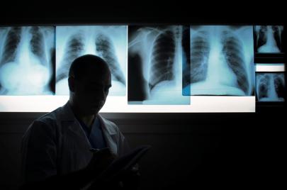 الخليل: مراكز أشعة غير مرخصة وأجهزة متهالكة